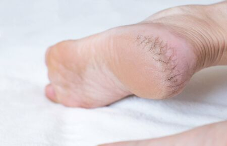 Dry cracked skin on the heels of a person s legs, close-up. The concept of serious diseases of the skin and thyroid gland