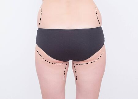 Marks on the legs and of a girl on a white background. The concept of buttock augmentation and shaping in cosmetology with implants, implant plastic