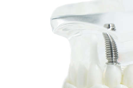 Artificial jaw with teeth and screwed implants on a white background, copy space.