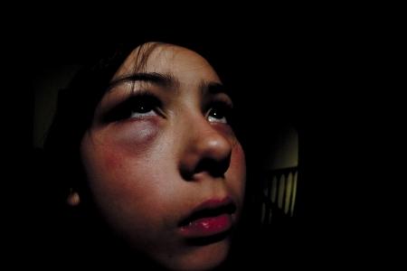 Girl with black eye