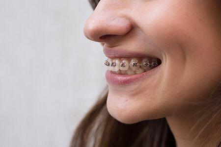 Beautiful young girl with metal dental braces with white teeth