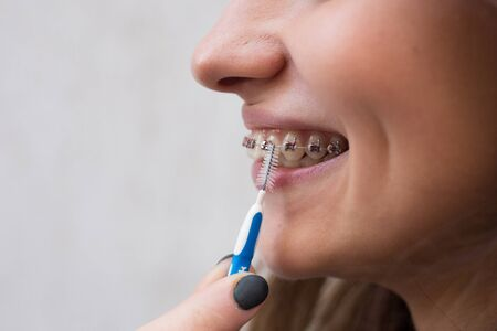 Beautiful young girl with metal braces for teeth with white teeth and brush