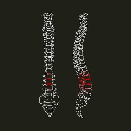 White silhouette of human spine with focus of pain in the lumbar area on black background Vector Illustration