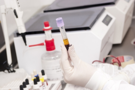 People Working At Laboratory of Blood Bank Stock Photo