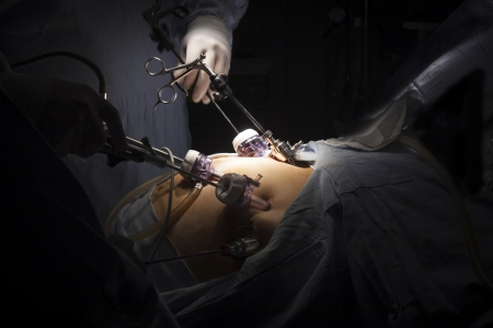 Portrait of gastric bypass surgery in hospital Stock Photo