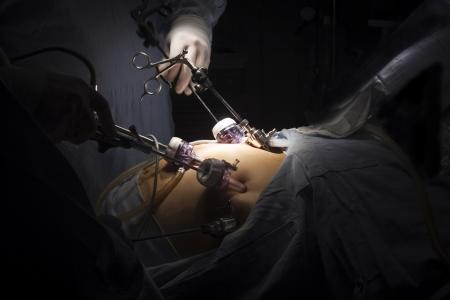 Portret van de maag-bypassoperatie in het zieken huis