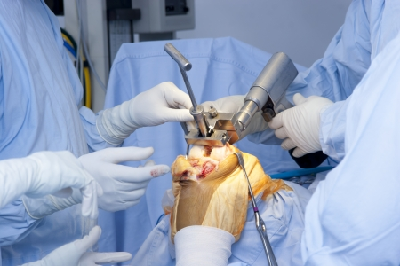 Detail of Surgery, Orthopedic Operation, Knee Surgery