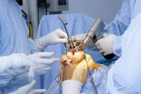 Detail van Chirurgie, Orthopedische operatie, knie-operatie Stockfoto