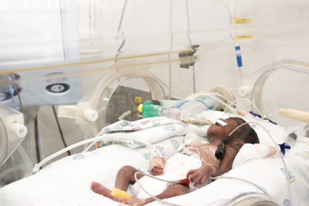 incubator: Portrait of newborn baby sleeping inside incubator