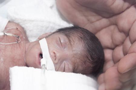 bebe enfermo: Retrato de bebé recién nacido y la mano dentro de incubadora  Foto de archivo