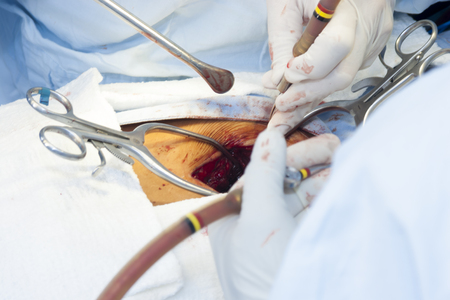 Surgical procedure in the hospital Stock Photo