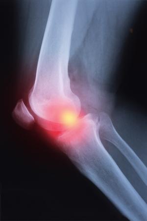Medical x-ray knee joint image with arthritis ( Gout , Rheumatoid arthritis , Septic arthritis , Osteoarthritis knee ) Stock Photo