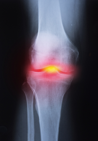 Medical x-ray knee joint image with arthritis ( Gout , Rheumatoid arthritis , Septic arthritis , Osteoarthritis knee ) 版權商用圖片