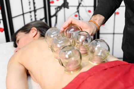 Traditional Chinese Medicine therapy. Cupping therapy, a treatment used for pain relief and other health benefits. Stock fotó