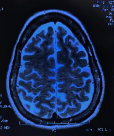 mra: magnetic resonance image (MRI) of the brain