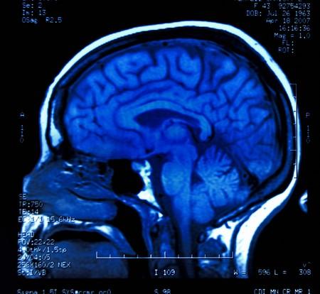 magnetic resonance image (MRI) of the brain Stock Photo - 4365908