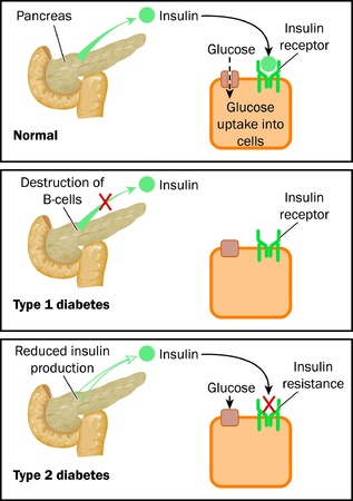 pancreas: Normal insulin action, type 1 and type 2 diabetes