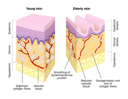 wrinkles: Old and young skin