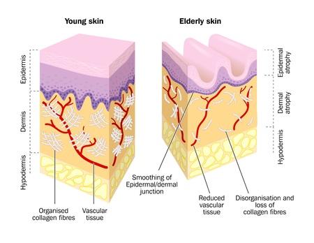 epiderme: Vieux et jeune de la peau.