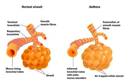 asthme: Alv�oles pulmonaires normales et dans l'asthme