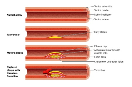 Plaque formation in artery Illustration
