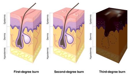 Huid verbranden niveaus Vector Illustratie