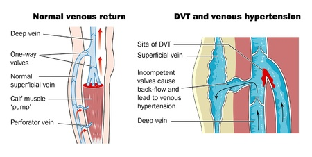 ventile: Anatomie der tiefen Venenthrombose