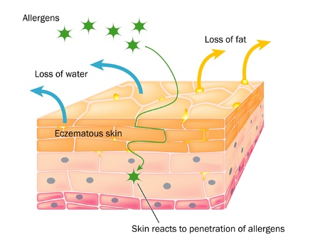 epidermis: Skin showing changes due to eczema