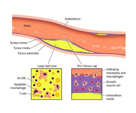 blood flow: La formazione dell'ateroma nella parete arteriosa