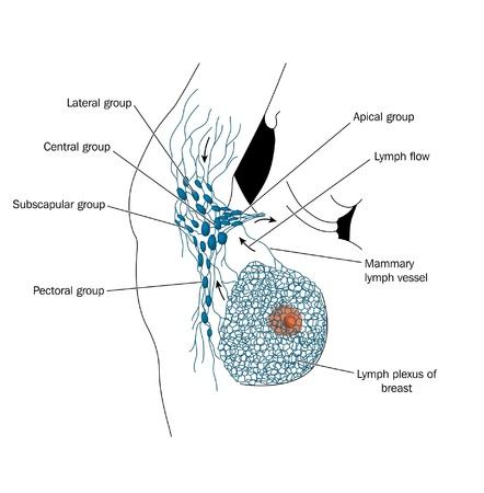 cancer de mama: Los ganglios linf�ticos axilares Vectores