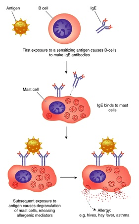 b cell: The role of antibodies and mast cells in allergy