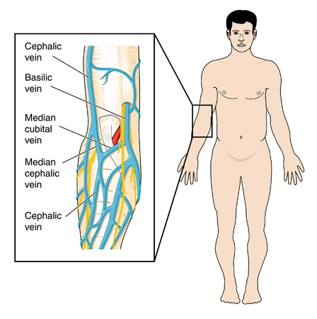 median: Veins of the antecubital fossa Illustration