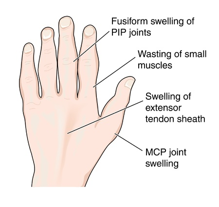 due: Changes in the hand due to arthritis