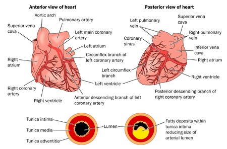 arteries: Anterior and Posterior views of the heart showing atheroma Illustration