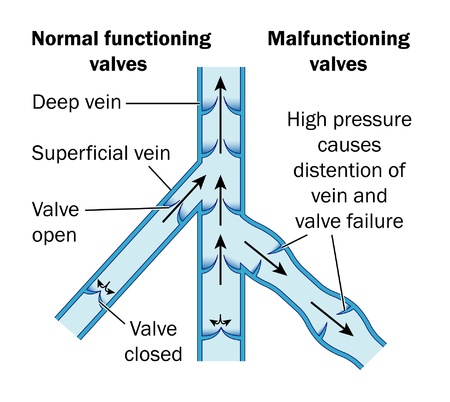 varicose veins: Normal vs varicose veins