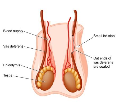 diagrama que muestra la posición de la próstata