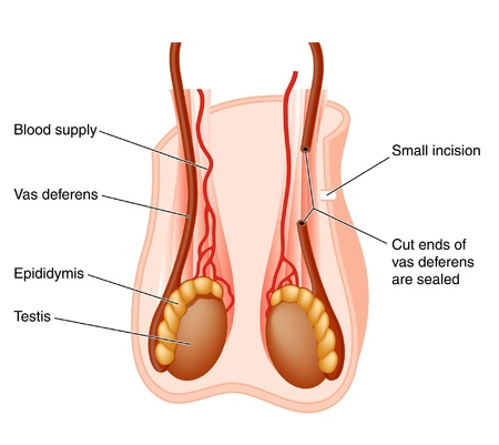 testes: Vasectomy
