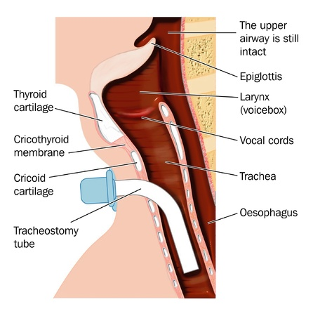 operative: Tracheostmy tube Illustration