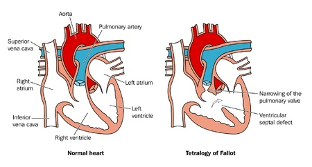 inferior: Heart septal defect Illustration