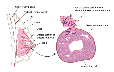 nipple breast: Cross section of breast with detail of ductal carcinoma