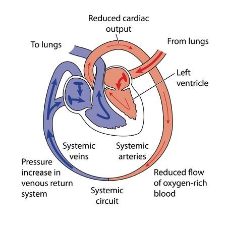 circolazione: Fattori che portano ad insufficienza cardiaca