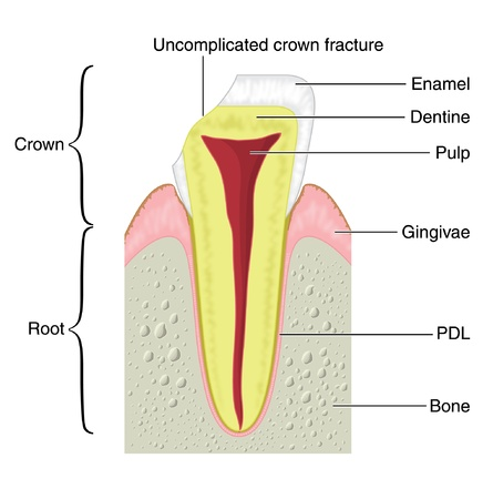 Cross section of a typical tooth with fracture