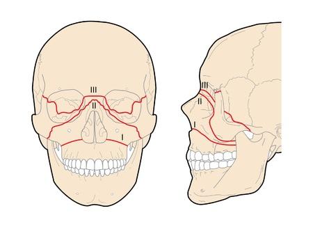 transverse: Le Fort skull fractures