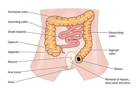 small intestine: El c�ncer rectal y el estoma Vectores