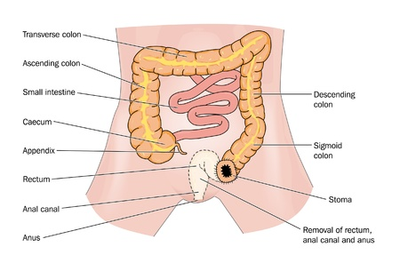 descending colon: Rectal cancer and stoma