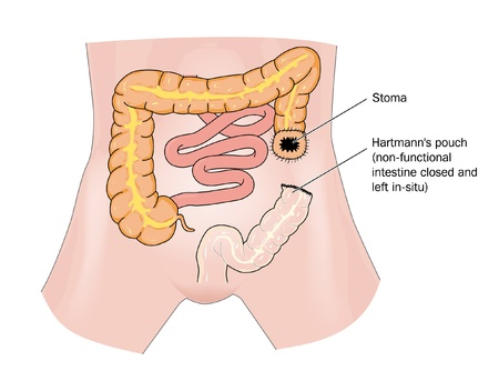 descending colon: Bowel cancer and stoma