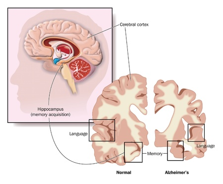 Drawing of the brain, showing the hippocampus and areas of brain involvement in Alzheimer s disease