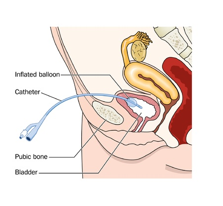 Drawing of a catheter placed through the abdominal wall into the female bladder  suprapubic  Vector