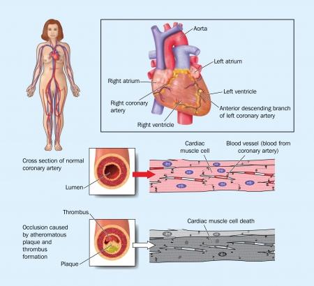 Dibujo del coraz�n que muestra las arterias coronarias bloqueadas por placa de ateroma, la placa y thromosis Foto de archivo - 13865464