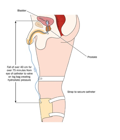 continence: Drawing of a catheter in a male bladder connected to a urine collection bag